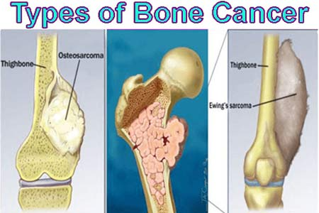 bone cancer symptoms