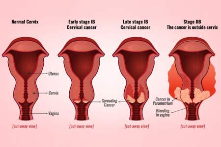 cervical cancer satges
