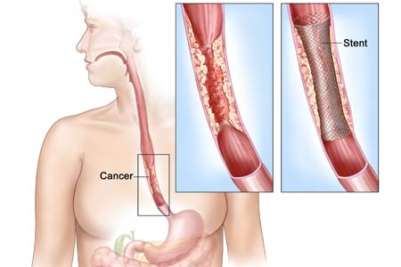 Esophageal Cancer Treatment Cost in India
