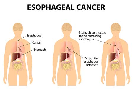 Esophageal Cancer types