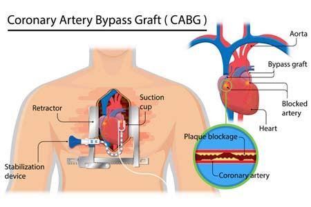 Heart Bypass Surgery Preparation
