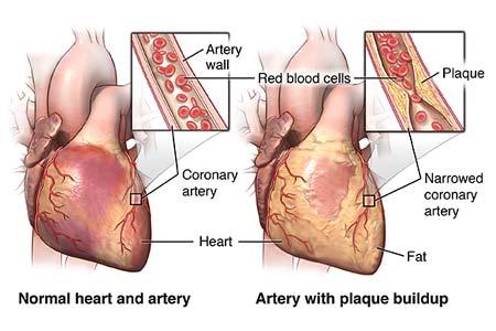 Heart Bypass Surgery Risks