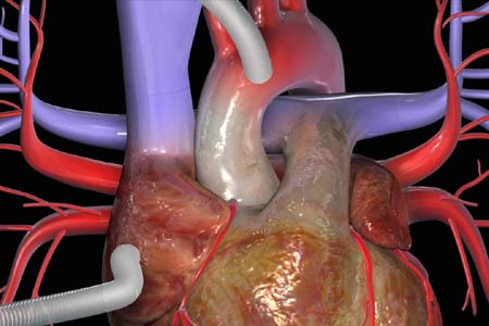 Heart Bypass Surgery in India