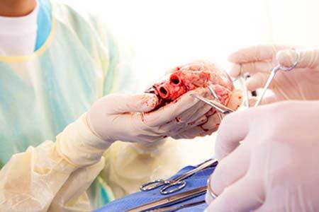 Heart Transplants Preparation