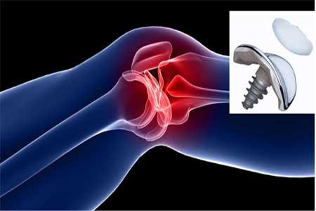 Knee Replacement Benefits
