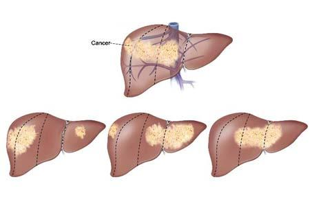 Liver Cancer stages