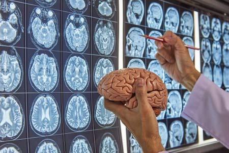 Neurosurgery Causes