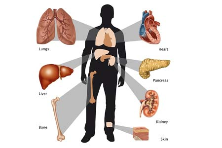 Organ Transplant Causes