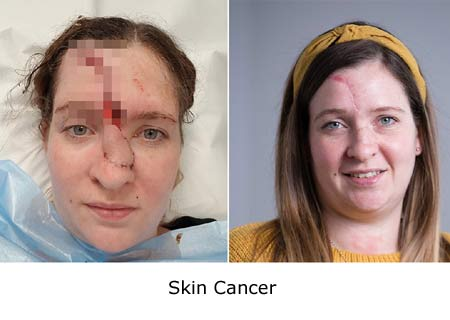 Skin Cancer Treatment Cost in India