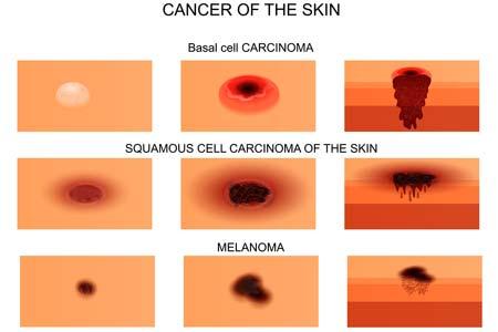Skin Cancer Types