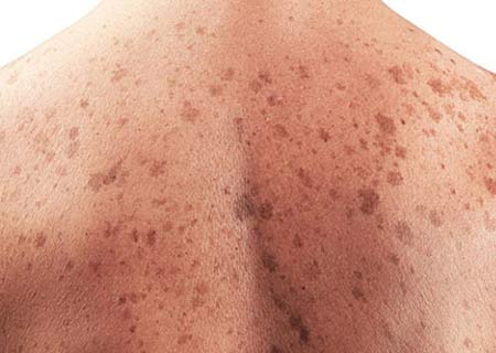 Skin Cancer Treatment in India