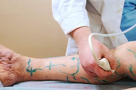 vascular surgery causes