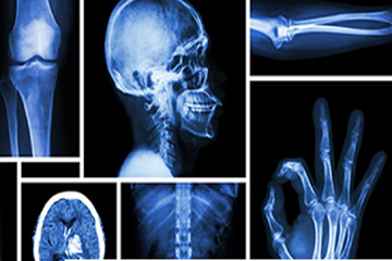 Imaging and radiology Solapur