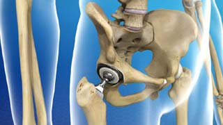 Hip Replacement Surgery Cost