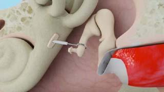 Stapedectomy in India
