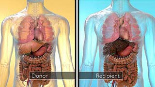 liver transplant India cost