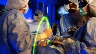 Laser Spine Surgery in India