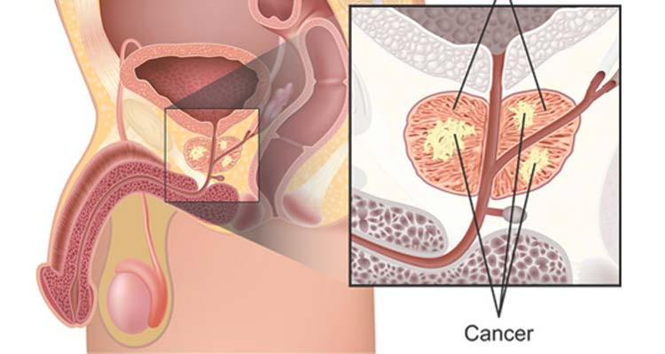 Prostate cancer treatment cost in India