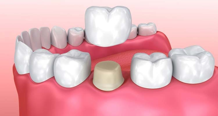 Dental Crown Treatment cost In India