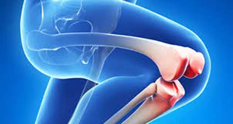 Knee Replacement Surgery Frequently Asked Questions