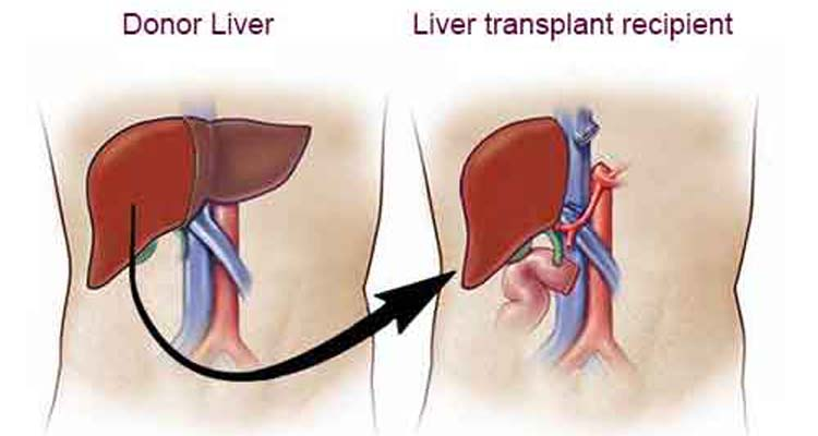 Liver Transplant Frequently Asked Questions
