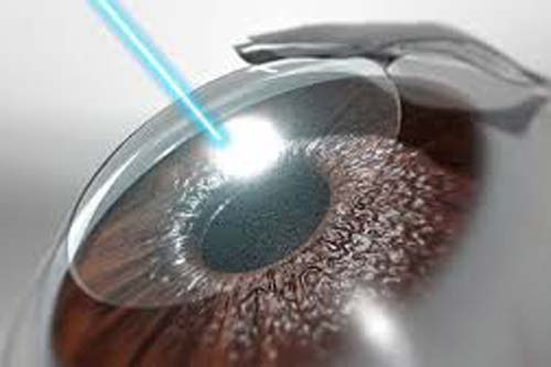 LASIK Surgery in Centre for Sight Indore